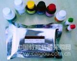 北京人乙型肝炎病毒X抗原(HBxAg)ELISA Kit