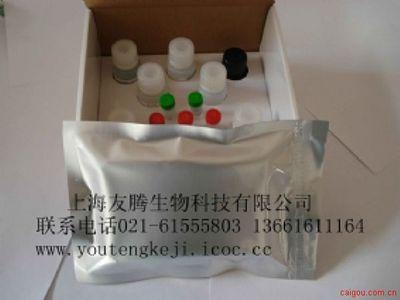 流感病毒IgM ELISA试剂盒