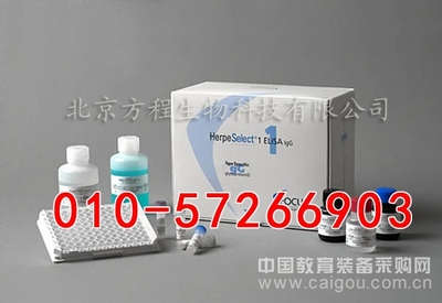 人抗腮腺管抗体(anti-parotid duct Ab)ELISA试剂盒价格