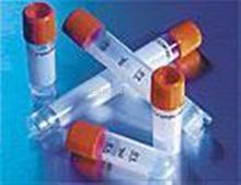 DNAJC9蛋白抗体