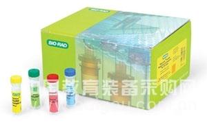 人脂多糖结合蛋白(LBP)ELISA试剂盒