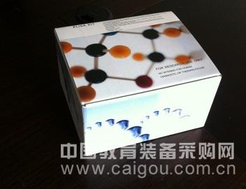 人BSP试剂盒,BSP ELISA KIT,人骨涎蛋白试剂盒