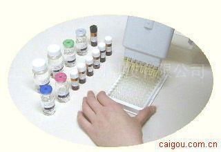 小鼠谷氨酸脱羧酶自身抗体ELISA试剂盒