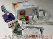 小鼠诱导型一氧化氮合成酶ELISA试剂盒