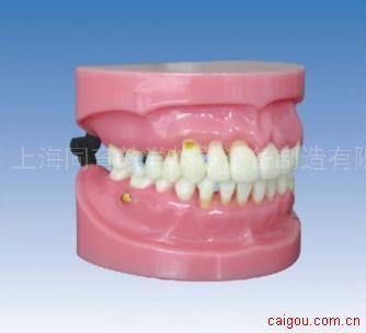 牙周病演示模型
