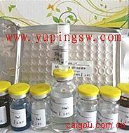 人组氨酰tRNA合成酶(Jo-1)ELISA Kit