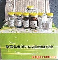 人谷氨酸脱羧酶抗体(GADA)ELISA试剂盒